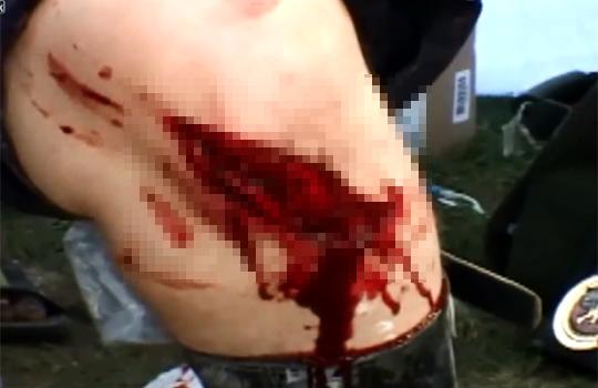 【グロ動画:スポーツ】プロレスで場外に投げ飛ばす!足が裂けて血塗れ・・・