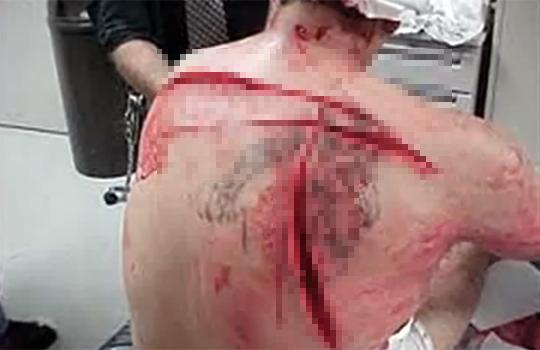 【グロ動画:怪我】刃物でズバズバ切られた痛々しい人の動画集