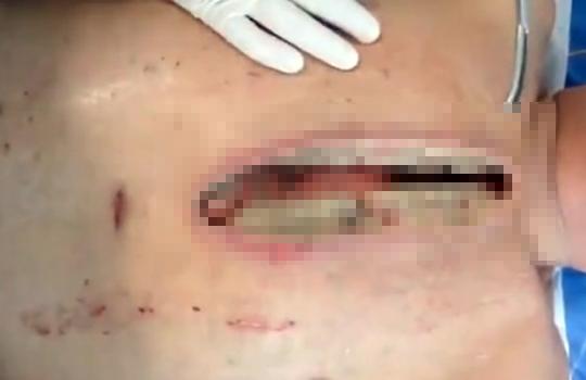 【グロ動画:手術】胸部を開けるととこんな状態・・・医者が毎日見ている風景