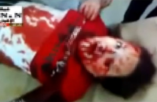 【閲覧注意:戦争】爆発の巻添えになったシリアの少年・・・目から大量の血が;