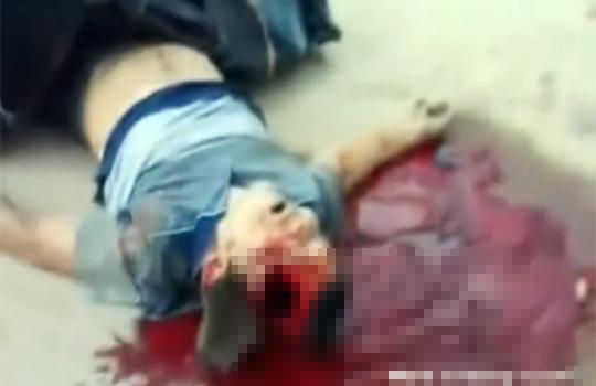 【グロ画像:事故】ポールに直撃した車・・・運転手の頭が抉れて血だまりが・・・