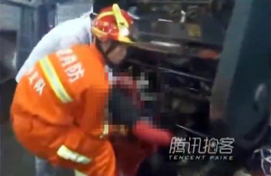 【閲覧注意】ゴミ処理機に髪が巻き込まれて顔の皮がはがれた女性・・・