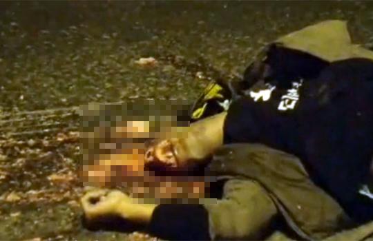 【グロ動画:事故】バイク事故で顎から上がミンチになった男性