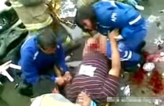 【閲覧注意:事故】ピンポイントで股間にダメージが集中してしまった男性