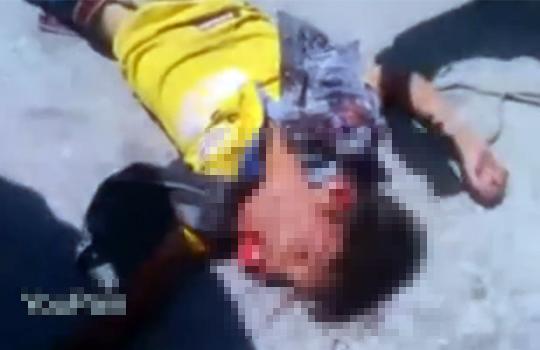 【グロ動画:事故】子供が車に轢かれて口から脳みそみたいな物が・・・