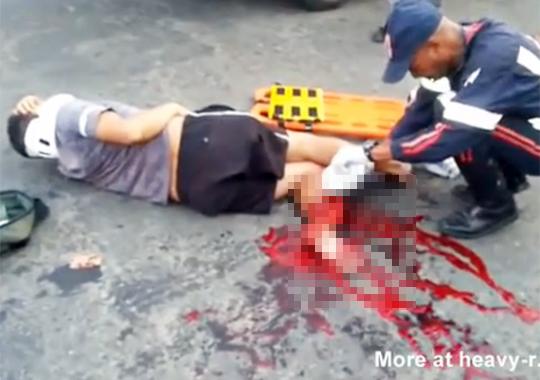 【グロ動画:事故】バイク事故で足が抉れてる・・・首なんかいいから足治せw