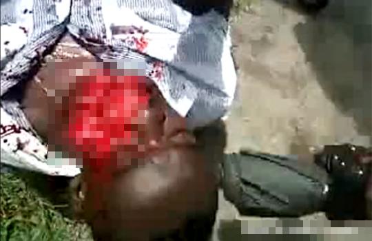 【グロ動画】事故で顔から地面に・・・顔面が抉れて悶絶
