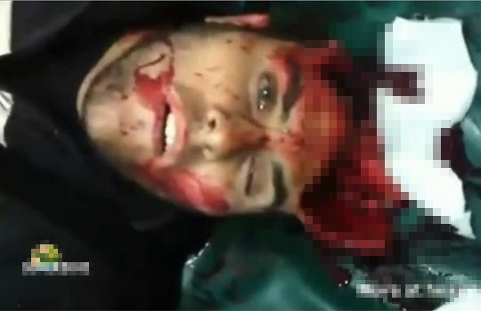 【グロ動画】脳を吹き飛ばされても生きている男性