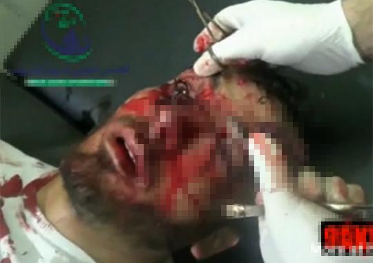 【グロ:手術】目に入った爆弾の破片を摘出する手術映像