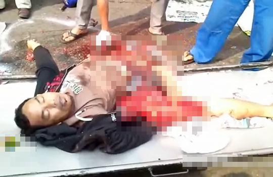 【グロ動画】バイク事故で血を吹き出しながら身体が真っ二つに・・・
