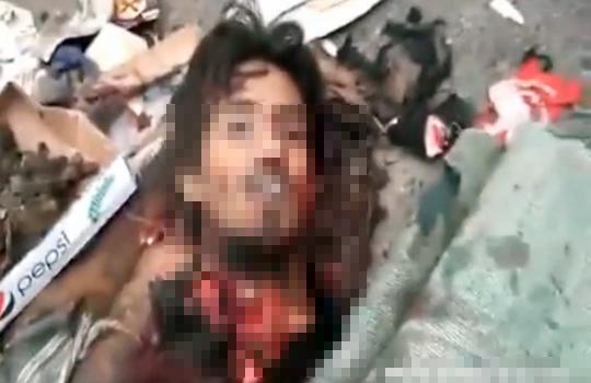 【グロ動画】自爆テロ犯人の死体が笑っている・・・