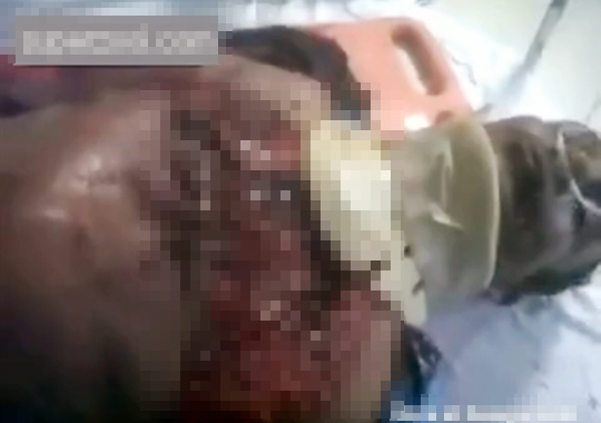 【グロ動画】おっぱいは大事!!胸部が破壊されたらこうなる・・・