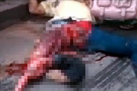 【事故映像】バイククラッシュで右足から中身がぶち撒けられる・・・