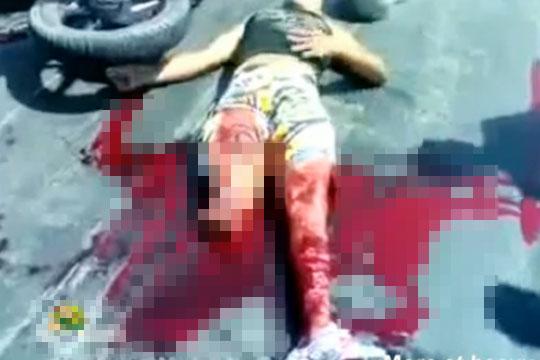 【グロ:事故】悲惨なバイク事故・・・足が吹き飛んでもがいてる・・・