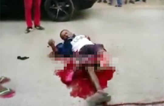 【グロ動画】事故で膝から下が千切れて悶える男性