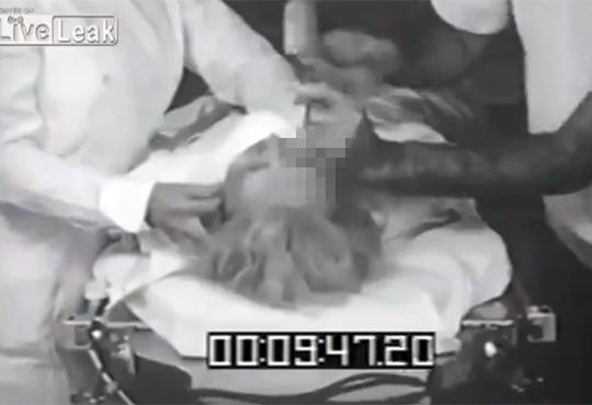 【閲覧注意】ロボトミー手術を収めた映像・・・見ないほうが良い