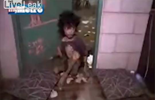 【衝撃映像】監禁され骨と皮だけになった15歳男の子救出劇
