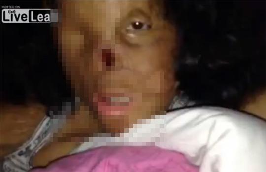 【閲覧注意】重度の火傷を負った女性の顔が・・・・・・・・・