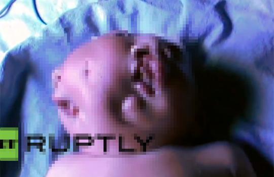 【グロ動画】リアルベルセルク・・・顔が二つある赤ん坊・・・