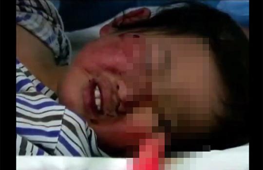 【グロ注意】刃物が目に付き刺さって歯を食いしばる子供・・・