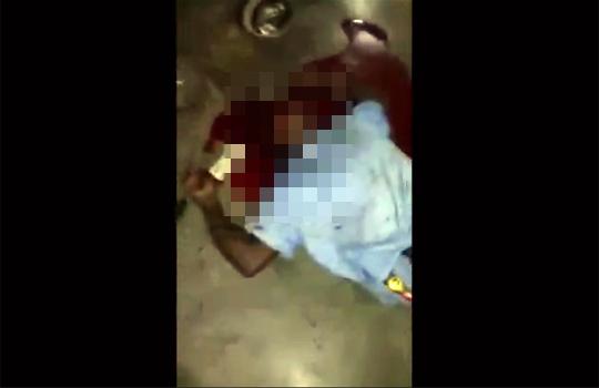 【グロ注意】マチェーテで頭を叩き割られて即死した男性・・・