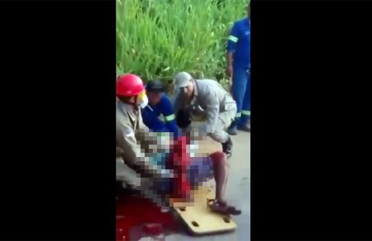 【グロ注意】事故カップル・・・彼氏の脚が潰れ彼女は血を吐いて叫び続ける・・・
