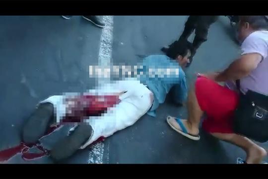 【グロ注意】バイク事故で左足が!?肉が裂けて中から白いものが・・・