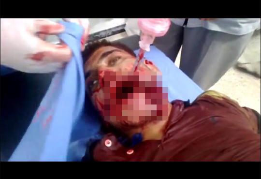 【グロ動画】手榴弾で亡くなった兵士の死体がグロ過ぎる・・・