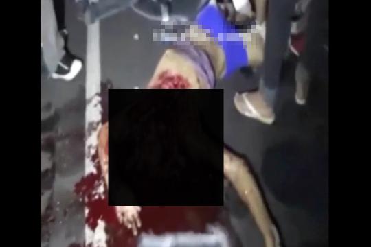 【グロ動画】事故で即死の男性、頭部の皮が剥がれて中身が・・・
