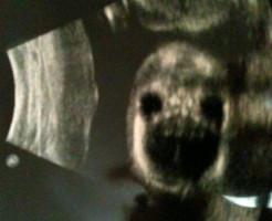 【閲覧注意】赤ちゃんのエコー写真ってなんでこんなに怖いの?