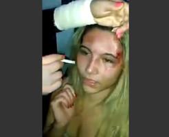 【衝撃映像】狂った妻は夫の愛人を誘拐し顔面に根性焼きを入れる
