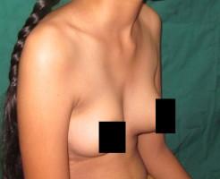 【エログロ】インド10代少女の「おっぱいから何か取れた」