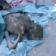 【グロ動画】イエメン爆撃の被害者・・・これは地獄絵図