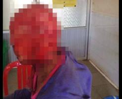 【閲覧注意】髪の毛を機械に巻き込まれた女性。耳ごと皮膚を持っていかれる・・・