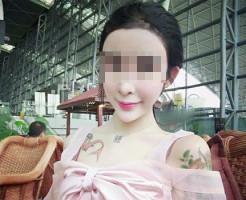 【グロ画像】これはヤバい。15歳の女の子が顔面を整形しまくった結果・・・