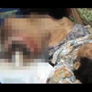 【グロ動画】腫瘍が育ち過ぎて胴体が二つになった女性 ※閲覧注意