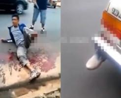 【グロ動画】車に足を食べられた少年がいるんだけど・・・ ※閲覧注意