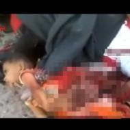 【グロ動画】戦争被害者 死んだ母親の横で内臓の出た赤ん坊がまだ・・・