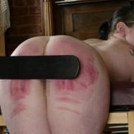【SM画像】美女のお尻やおっぱいが腫れるまで調教してみたw
