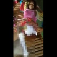 【グロ動画】少女の脚がゾンビ化してんだけど・・・ 閲覧注意