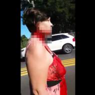 【グロ動画】首取れそうな女性が平然と歩いてるんだけど・・・