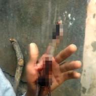 【グロ動画】手に鉄棒が突き刺さって貫通したけど意外と平気です・・・