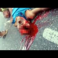 【グロ動画】バイクで転倒・・・運悪く目に穴が開いて死亡・・・ 閲覧注意