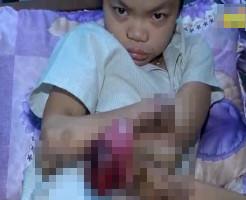 【閲覧注意】手足が溶けて行く原因不明の奇病を発症した少女・・・・