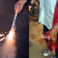 【閲覧注意】花火持って遊んでたら暴発して手が粉々になった・・・