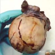 【グロ注意】巨大な腫瘍の中身がグロ過ぎる・・これは見ない方がいい・・・