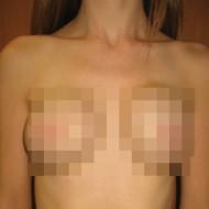 【閲覧注意】こちらが乳がんで乳房を摘出した女性達の画像です・・・(画像19枚)