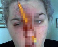 """""""【グロ注意】鼻の穴に鉛筆を突き刺して遊んでた女性がヤリ過ぎた・・・ """""""