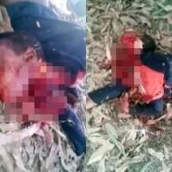 【閲覧注意】臓器密売のために殺された子供の死体がこれ・・・ 動画有り