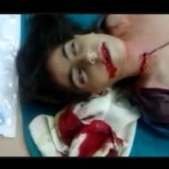 【グロ動画】血まみれ少女が白目向いて虫の息なんだが・・・